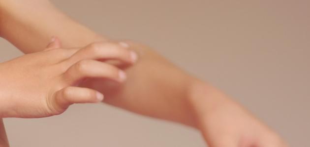 ما هو علاج الاكزيما الجلدية