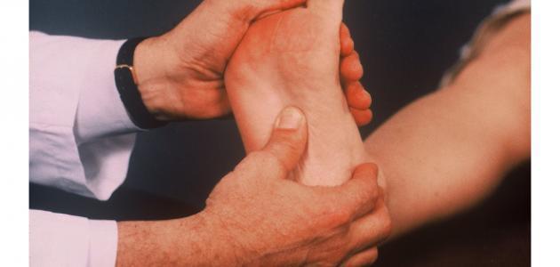 ما هي أسباب ألم باطن القدم
