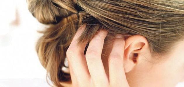 التهاب فروة الراس وتساقط الشعر