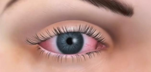 مرض جفاف العين اسبابه وعلاجه