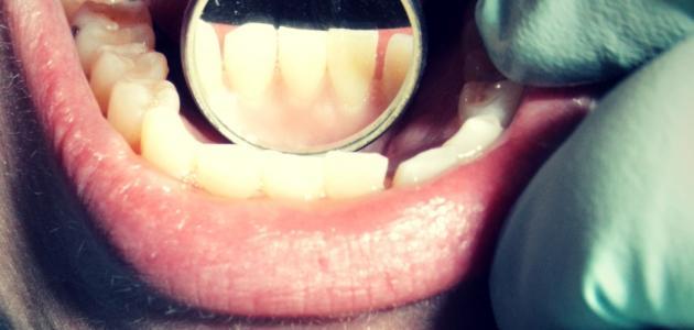 ماهو علاج جير الاسنان
