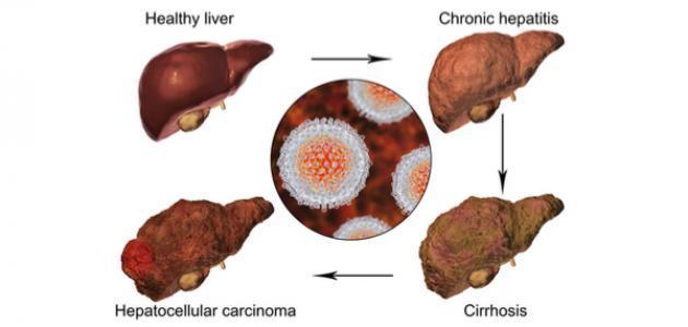 ماذا يعني تضخم الكبد
