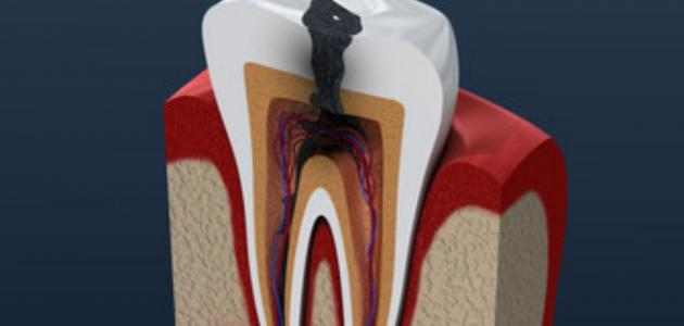 مخاطر تسوس الاسنان