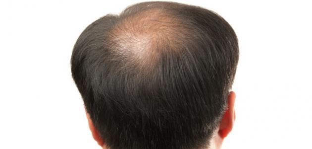 علاج ضعف بصيلات الشعر