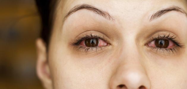اعراض التهاب الشبكية