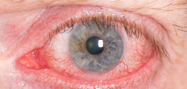 اصفرار العين والبول
