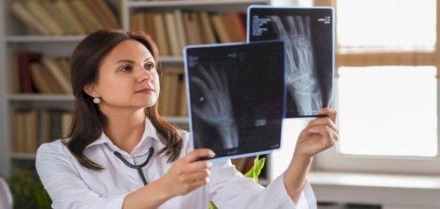 مرض تصلب العظام