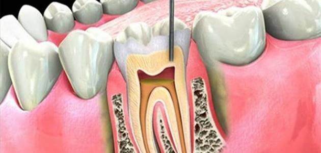 العلاج التحفظي وتجميل الأسنان