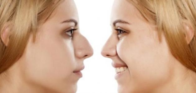 اعراض عملية تجميل الانف