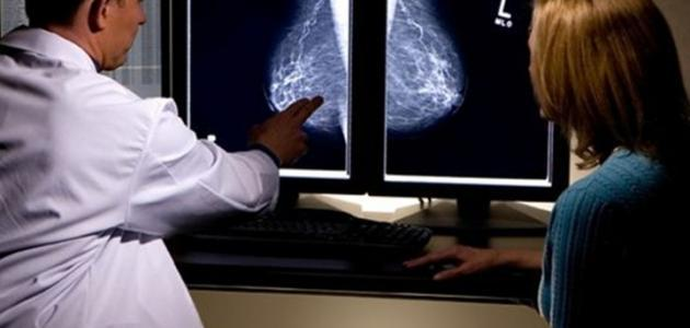 علاج مرض الثدي