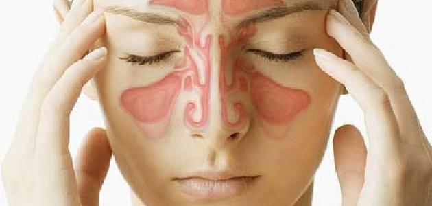 التهاب حاد في الجيوب الانفيه