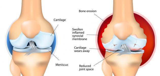 اعراض التهاب مفصل الفخذ