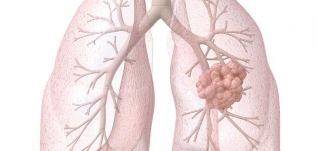التهاب ذات الرئة عند الاطفال