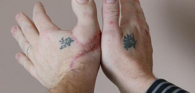 التهاب اوتار الاصابع