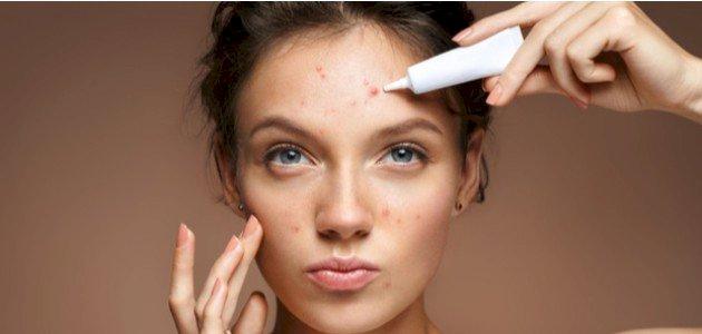 أحسن علاج لحبوب الوجه