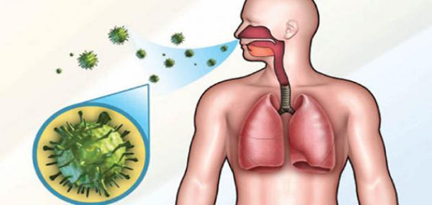 بحث عن مرض السل الرئوي