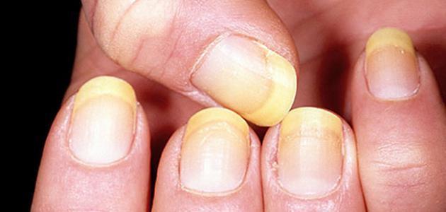امراض اظافر اليد