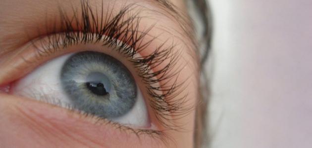 ماهو سبب احمرار العين