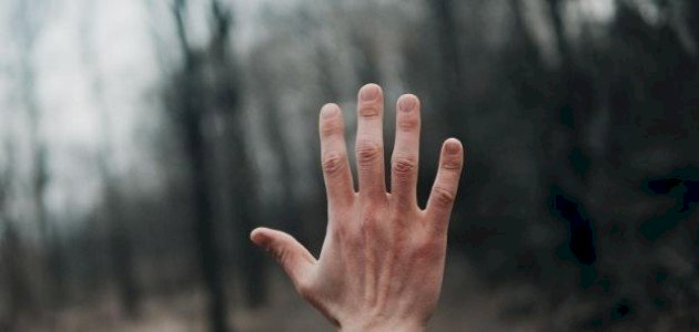 تورم كف اليد اليمنى
