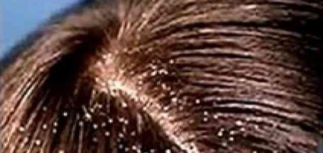 افضل طريقة للتخلص من قشرة الشعر نهائيا