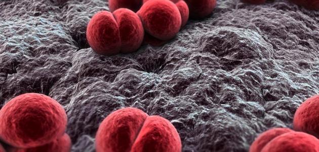 التهاب السحايا البكتيري
