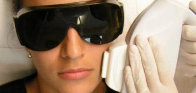 آثار الليزر على الوجه