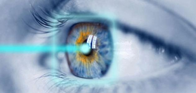 جراحة الليزر للعيون