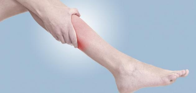 مرض تشنج العضلات