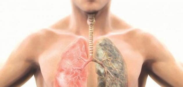 جراحة سرطان الرئة