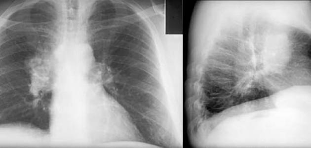 سبب سرطان الرئة