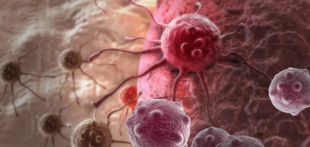 هل سرطان الثدي وراثي؟