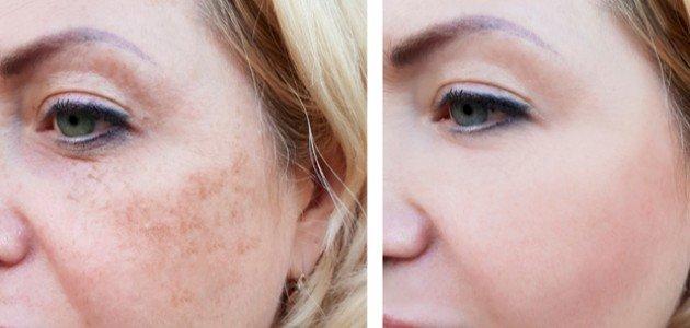 أفضل علاج للبقع البنيه في الوجه