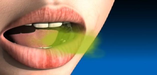دواء للتخلص من رائحة الفم