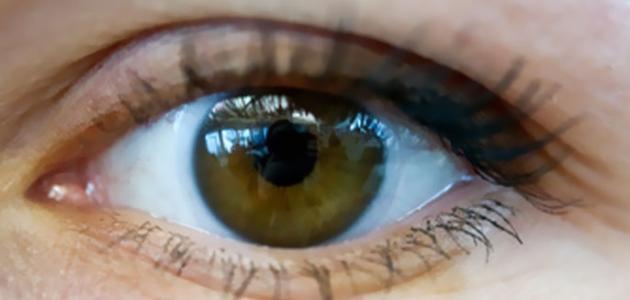 امراض شبكية العين الوراثية
