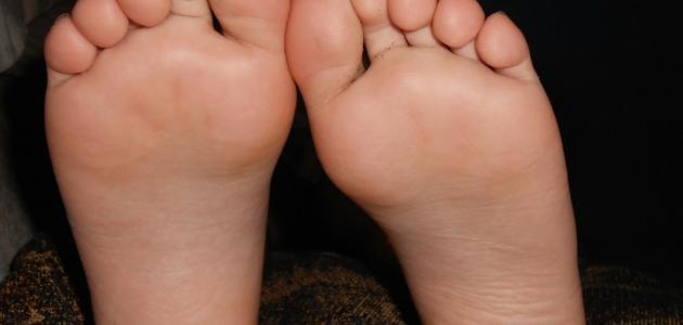 التخلص من تشقق القدمين في يومين