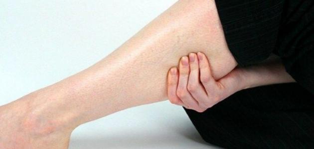 ألم بطة الساق