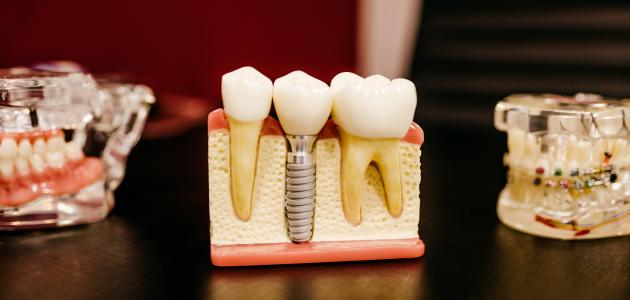 الفرق بين تركيب الأسنان والزراعة