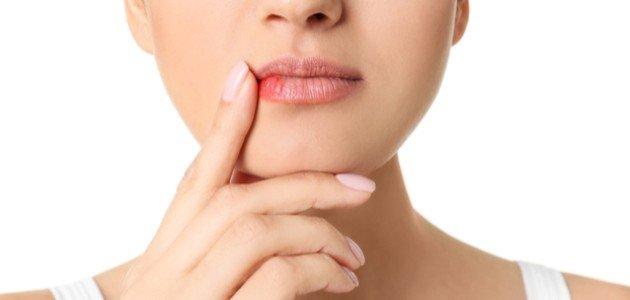 علاج التهاب الشفايف