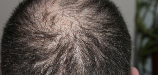 التهاب فروة الشعر