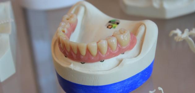 التهاب لثة الأسنان