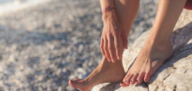 التهاب بين أصابع القدم