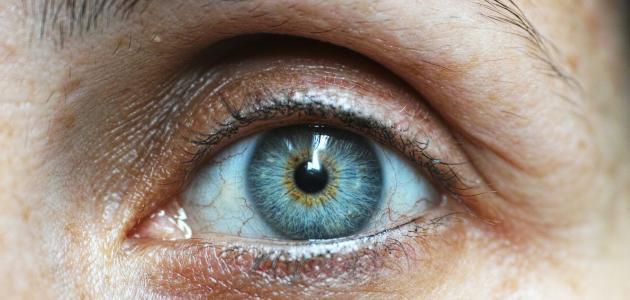 الماء الأبيض في العين أسبابه وعلاجه