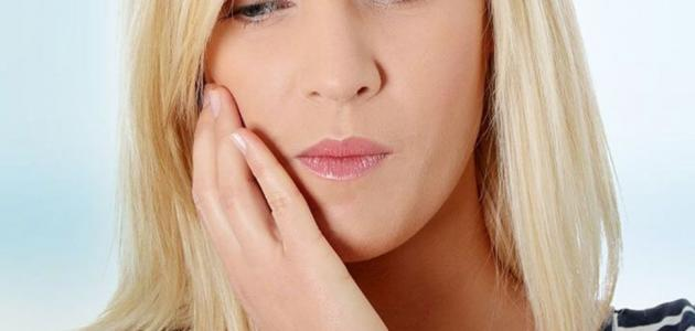 التهاب حول الفم