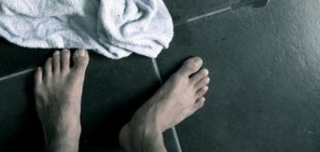 علاج فطريات القدم