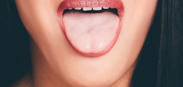التهاب مقدمة اللسان