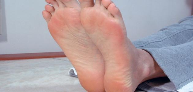 علاج كعب القدم بالاعشاب
