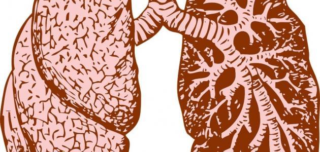 أنواع أورام الرئة