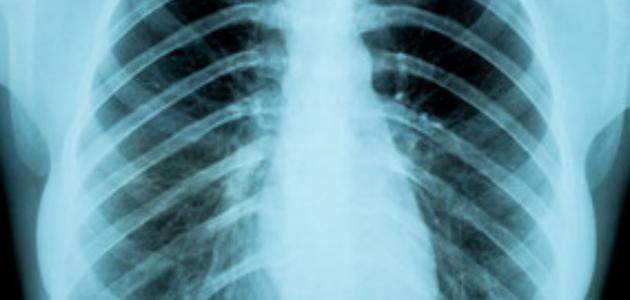 التهاب عظام القفص الصدري