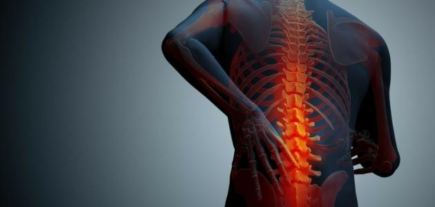 اعراض التهاب النخاع الشوكي