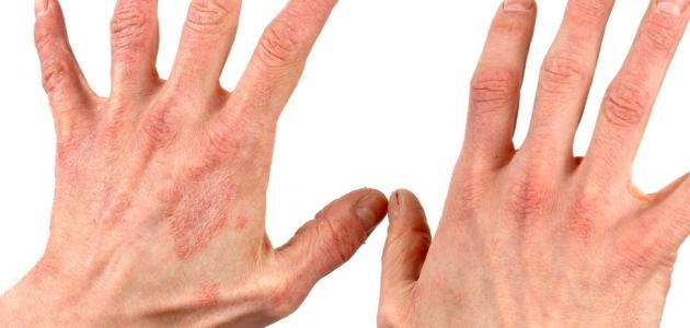 التهاب الجلد العصبي